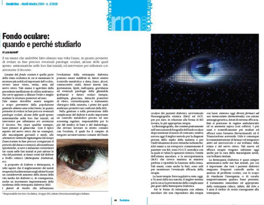 fondo oculare roma