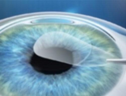 ReLex Smile: novità nei risultati per la cura della miopia