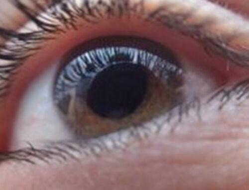 Nuova cura del glaucoma