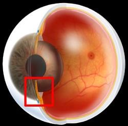 glaucoma roma